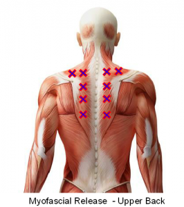 Myofascial Release upper back